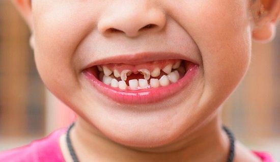 Bố mẹ cần làm gì giúp trẻ phòng ngừa sâu răng
