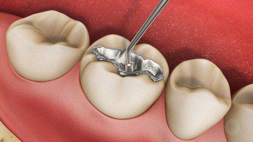trám răng và những điều cần biết